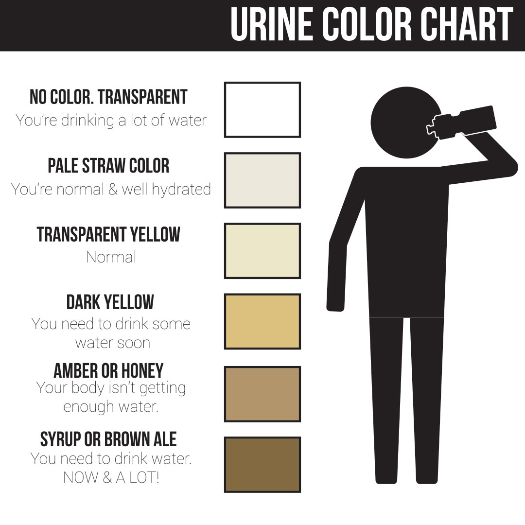 Chart showing levels of urine color during dehydration.